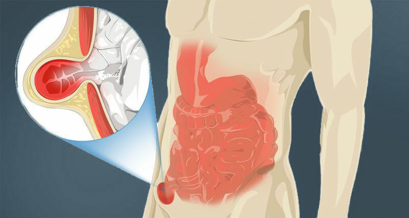 What are hernias? Stamford, CT